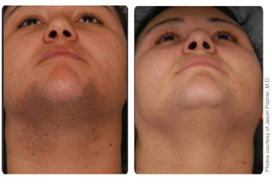 Hair Removal Results Carrollton